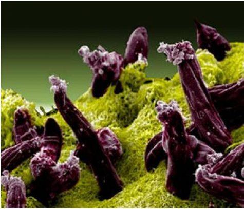 : Scanning electron micrograph of Plasmodium gallinaceum invading mosquito midgut, Courtesy of WikiCommons